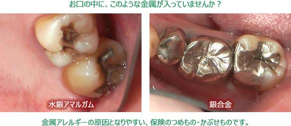 歯科金属アレルギーになりやすい 水銀アマルガムと銀合金